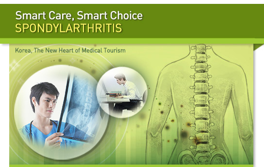 Smart Care, Smart Choice : Spondylarthritis